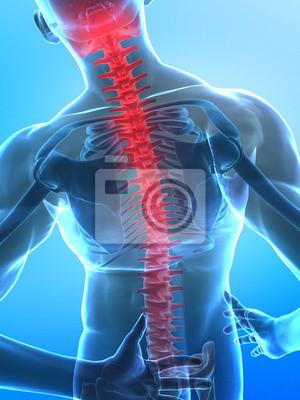 Menschlichen x -ray wirbelsäule fototapete • fototapeten Wirbel ...