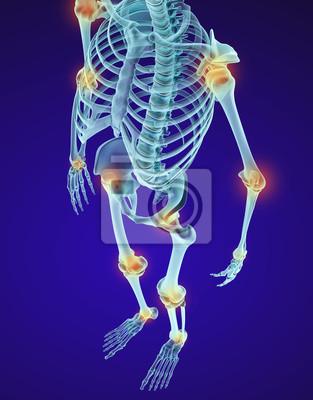 Menschliches skelett und verdammte gelenke. röntgensicht ...