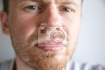 Mann herpes Genital herpes: