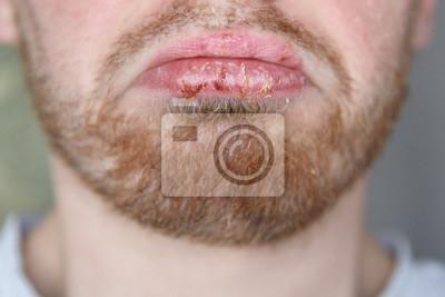 Mann herpes Zur Pathogenese
