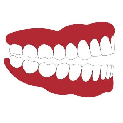 Großartig Mund Draht Chirurgie Geschlossen Bilder - Die Besten ...