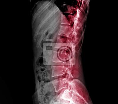 Röntgen lumbo-sakralen wirbelsäule und becken fototapete ...