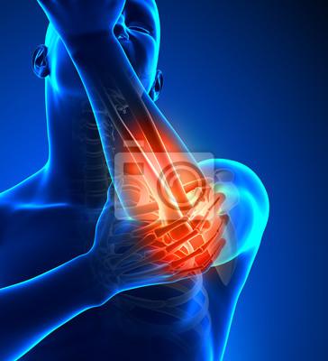 Schmerzen im ellbogen male - frontansicht fototapete • fototapeten ...