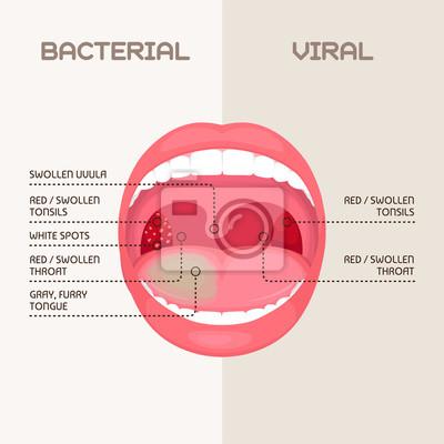 Virale Entzündung
