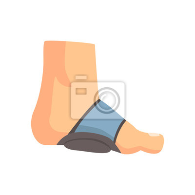 Gips fuß Gebrochener Fuß