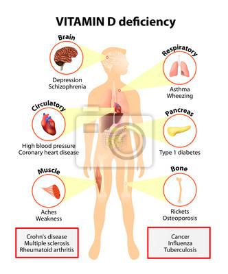 Vitamin d3 mangel symptome