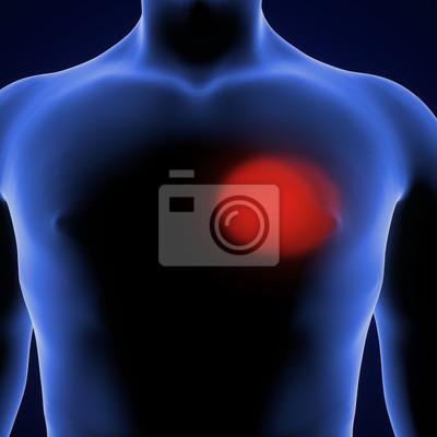 3d übertragen von magenschmerzen des menschlichen körpers wandposter ...