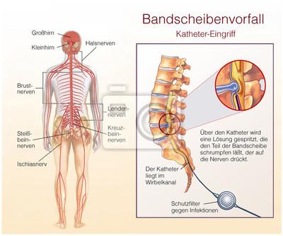 Bandscheibenvorfall. katheter-eingriff wandposter • poster ...