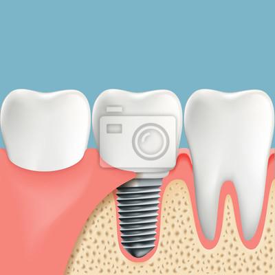 Menschliche zähne und zahnimplantat. anatomie der mundhöhle ...