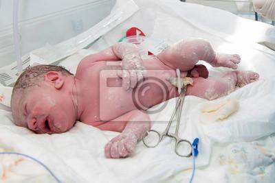 Poster Neugeborenes Baby Nach Der Geburt Im Krankenhaus