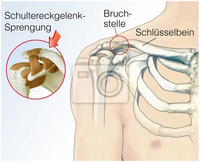Schultereckgelenk-sprengung wandposter • poster Schlüsselbein ...