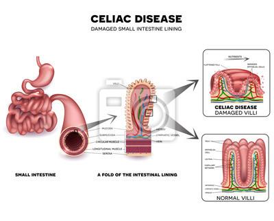 Zöliakie detaillierte anatomie, gesunde darmzotten und beschädigte ...