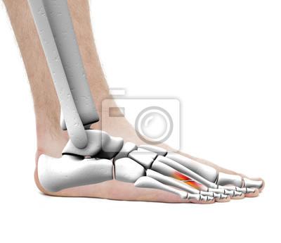 Fuß fracture metatarsal knochen - anatomie männlich - studio ...