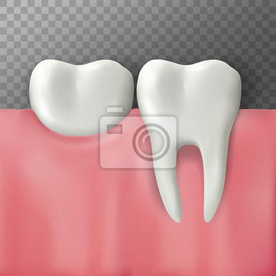 Realistic Vector illustration of teeth on gum. Transparent background.